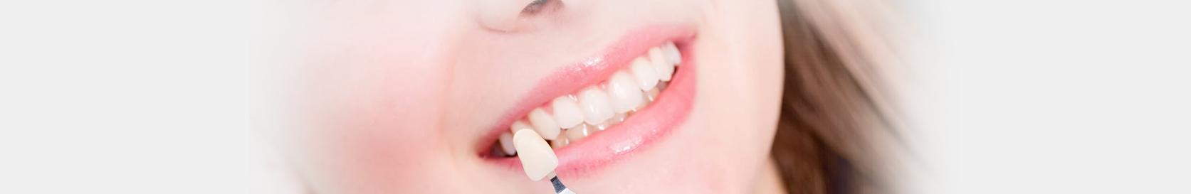 Dental color matching