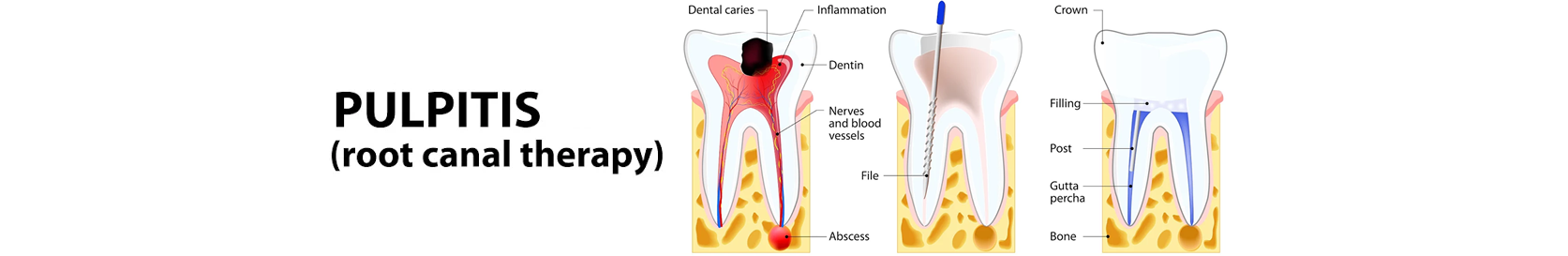 Pulpitis root canal therapy)