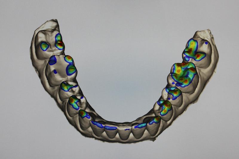 itero digital scan image