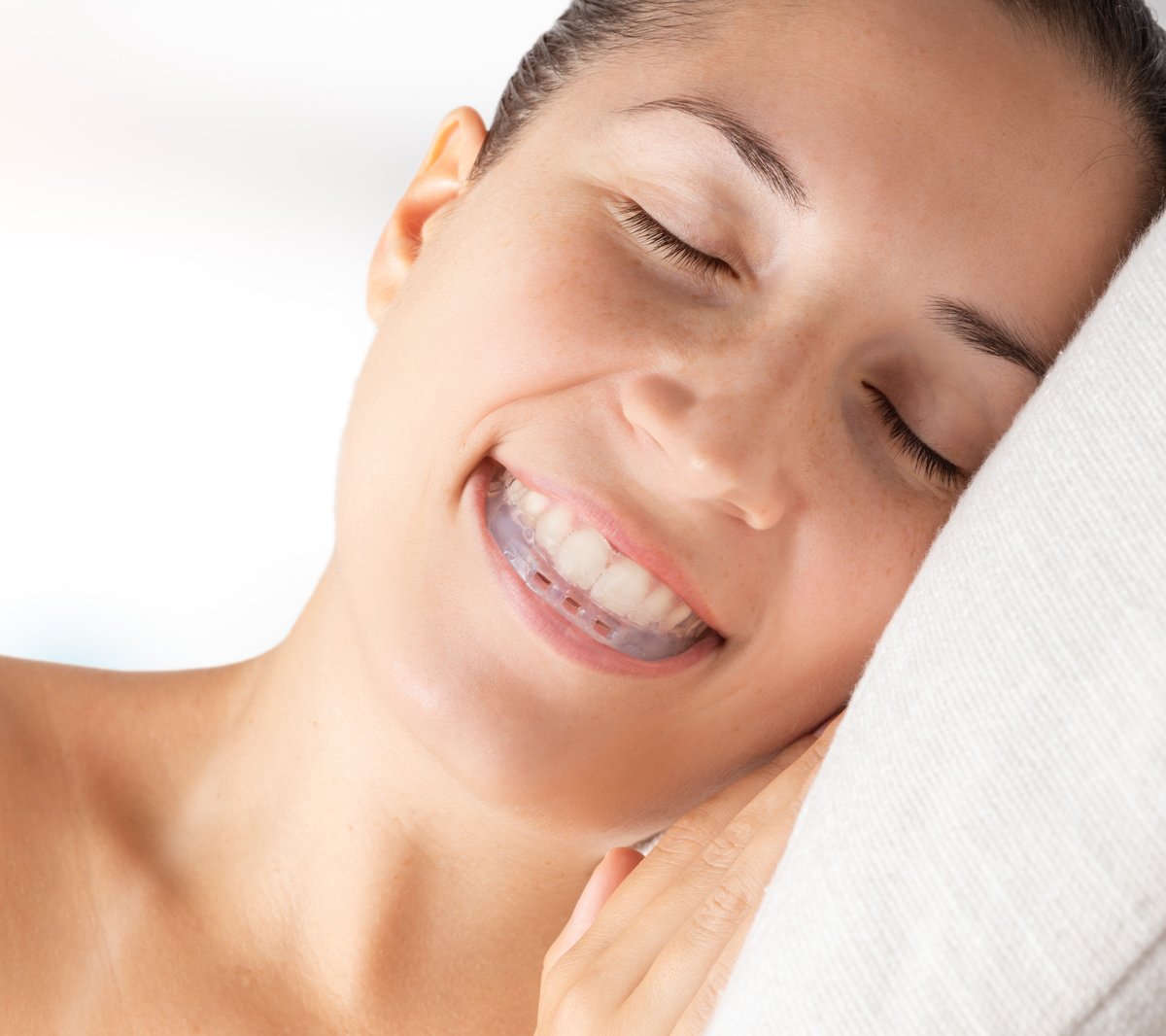 woman sleeping with oral appliance therapy